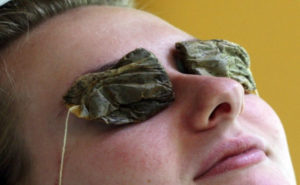 tea bags eye treatment flash burn